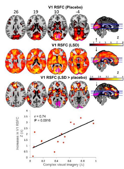 Was LSD mit unserem Gehirn macht Bild2-33