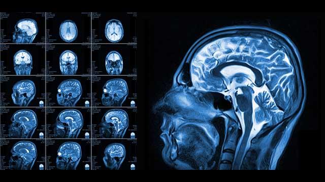 Fluorid schadet dem Gehirn: Wissenschaftler wegen klaren Fakten angegriffen (Video)